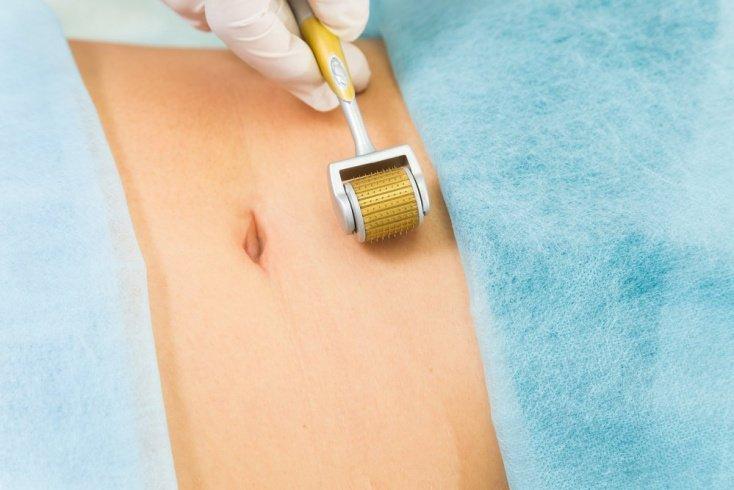 Мезороллер против носогубных складок, растяжек и шрамов