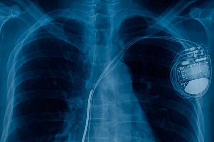Процедура имплантации: анестезия или наркоз?
