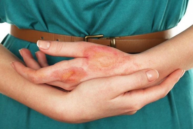 Ожог: как происходит повреждение тканей?