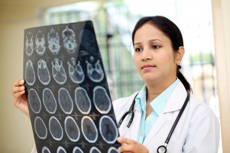 Каким изменениям подвергается мозг при болезни Альцгеймера?