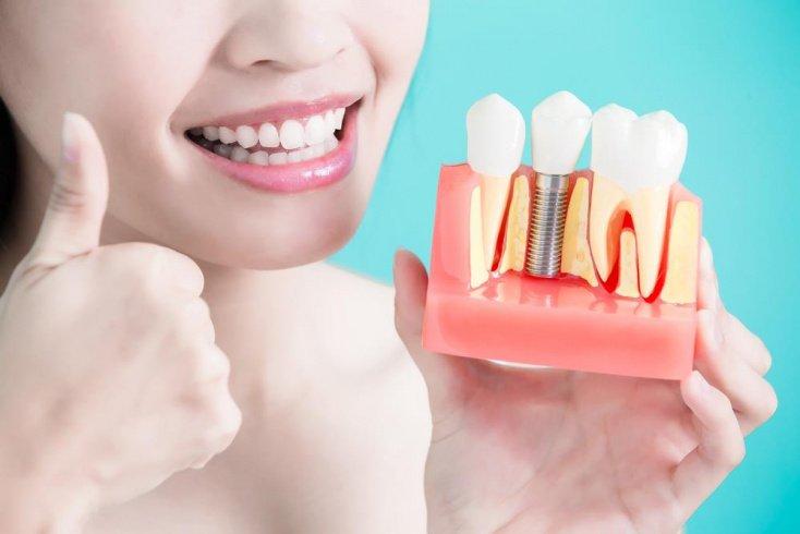 Советы стоматологов после протезирования