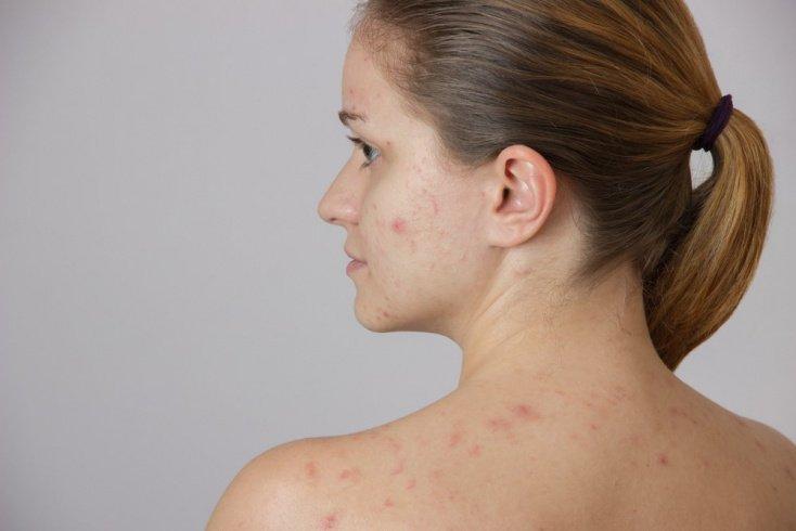 Причины такого заболевания кожи, как карбункул