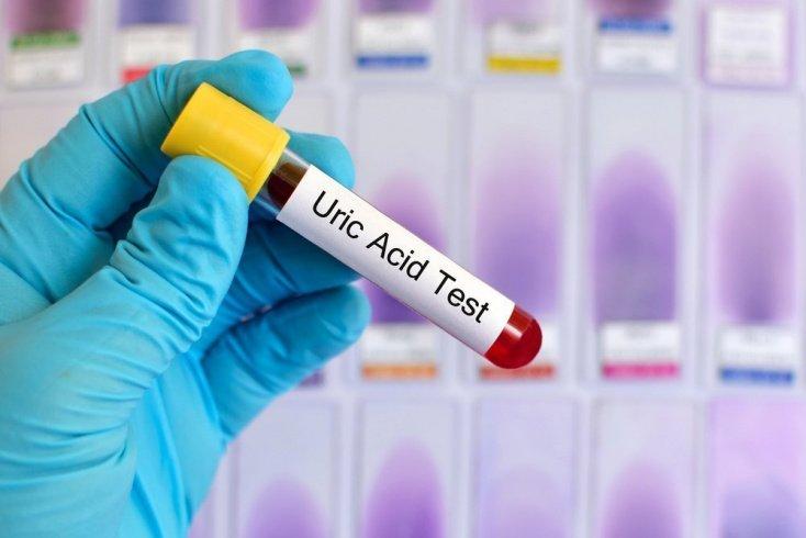 От чего зависит концентрация мочевой кислоты в крови