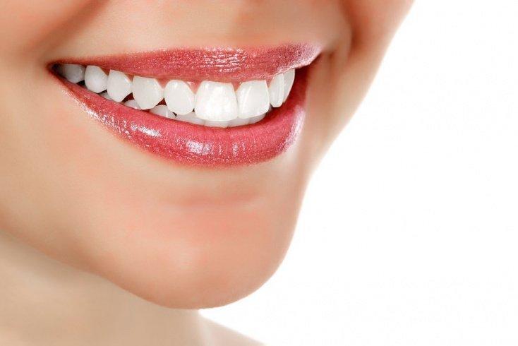 Красивые — это зубы без кариеса