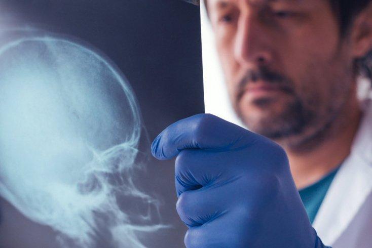 Рентгенография придаточных пазух