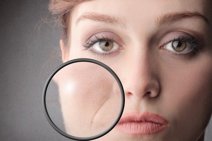 Причины появления морщин возле рта