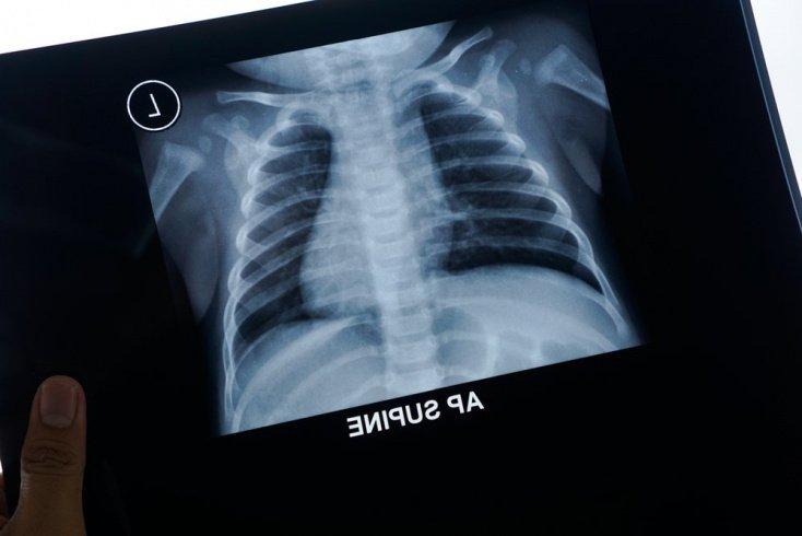 Пневмония: симптомы у детей