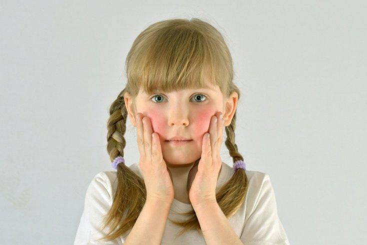 Комплексная терапия атопического дерматита