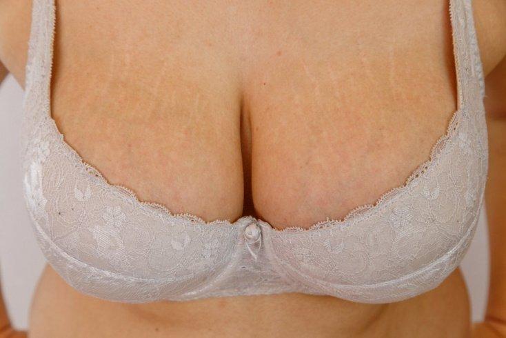 Механизм возникновения растяжек на груди и животе после родов