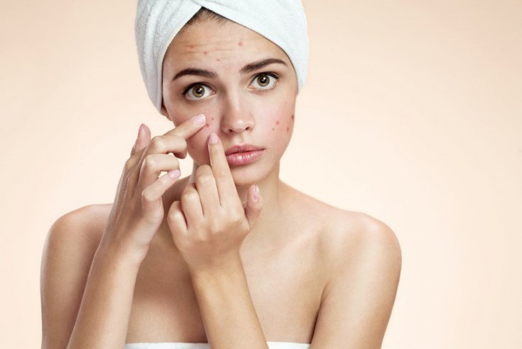 Что такое проблемная кожа?