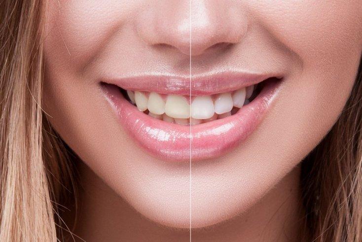 «Отбеливайте зубы каждые 6-12 месяцев»
