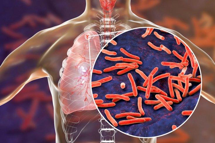 Туберкулез: заражение опасной инфекцией