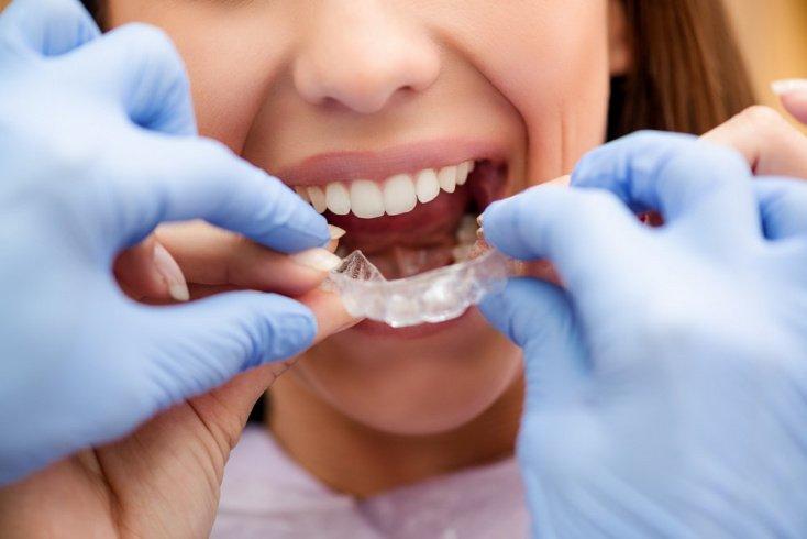 Ортодонтические пластинки в полости рта у детей