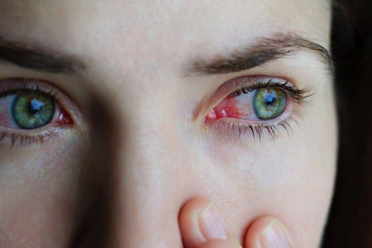 Причины такой болезни, как глаукома