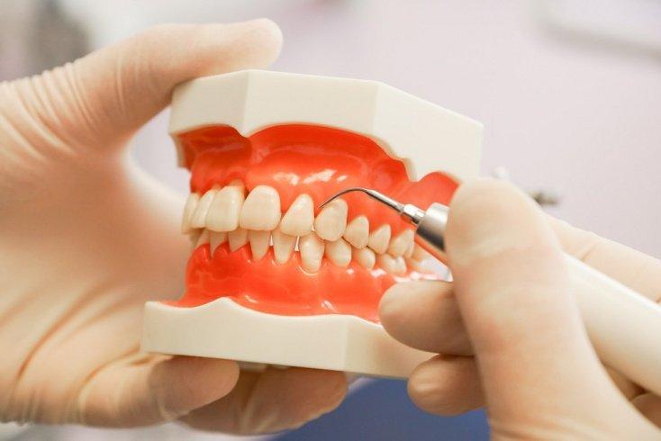 Микробиом полости рта и опасные болезни