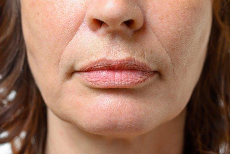 Полезные советы для повышения эластичности кожи