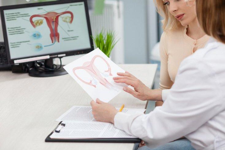 Какие типы синдрома поликистозных яичников встречаются?