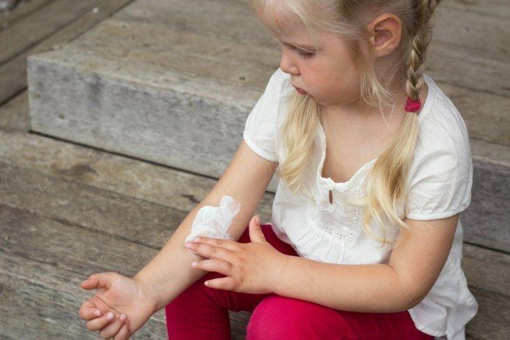 Методы лечения экземы у детей