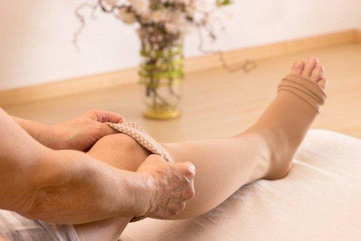 Расширенные вены на ногах не опасны, опасен — тромбофлебит!