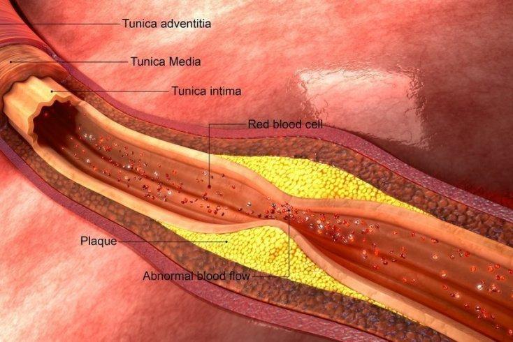 Как забиваются артерии?