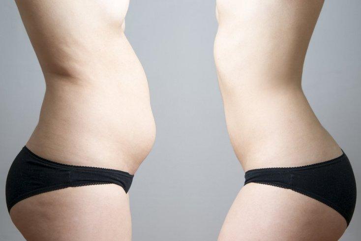 Преимущества и недостатки «бельевого» похудения