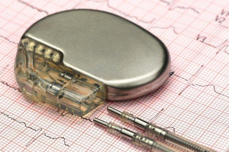 Кардиостимулятор при болезнях сердца