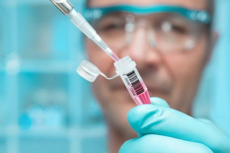 Лабораторные тесты в диагностике вируса лихорадки Ласса