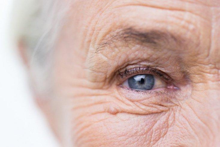 Симптомы, свидетельствующие о развитии катаракты