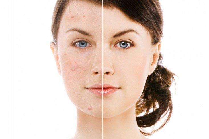 Проблемная кожа: убираем следы от прыщей