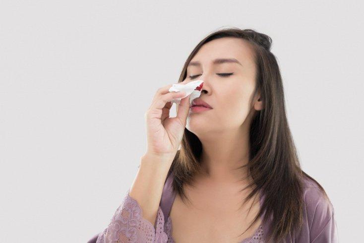 Запрокидывание головы назад при кровотечении из носа