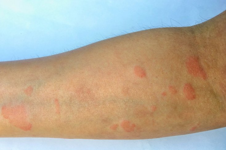 Особенности поражения кожи