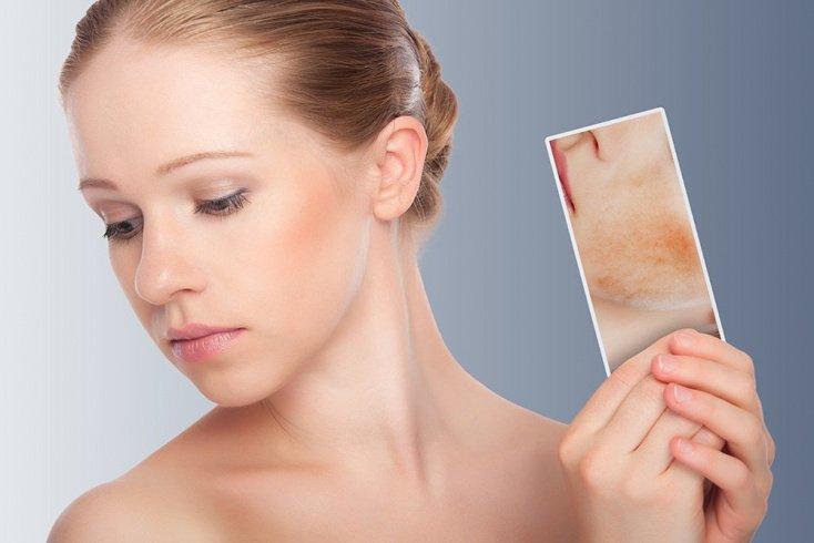 Избавление от пигментации кожи