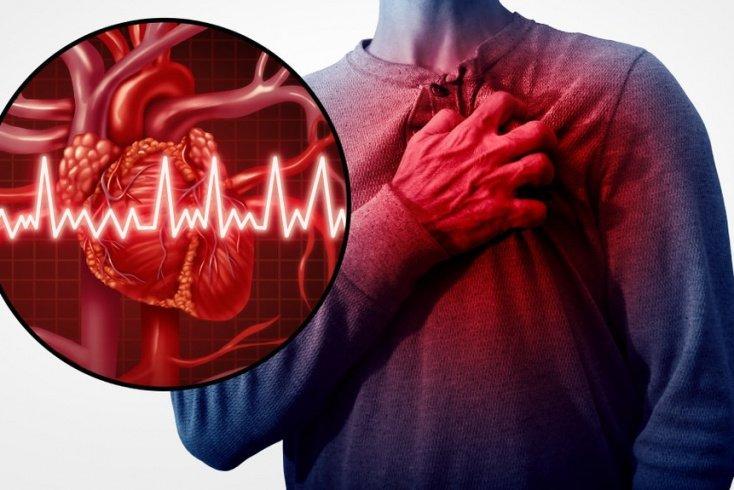 Какие артерии страдают?