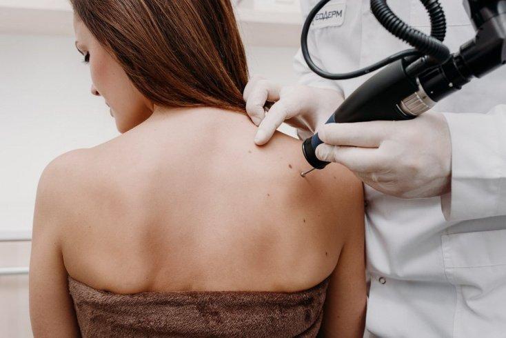 Профилактика болезней кожи: удаление родинок