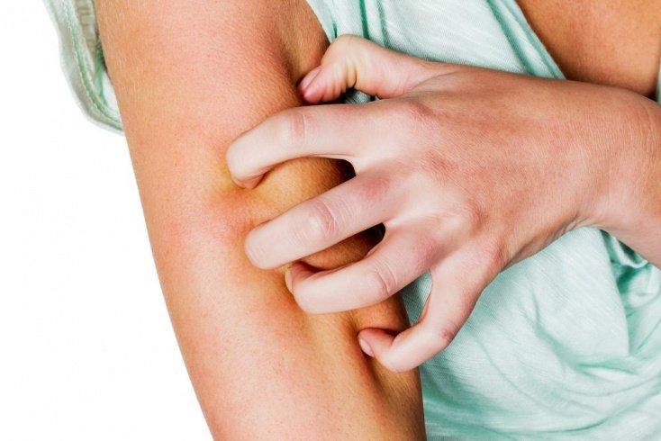 Дерматит от солнца или контакта с аллергенами