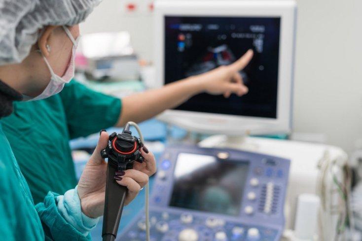 Чреспищеводная эхокардиограмма: ток крови и работа клапанов