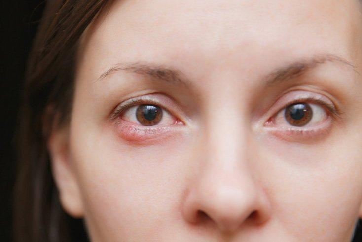 Симптомы при воспалении век