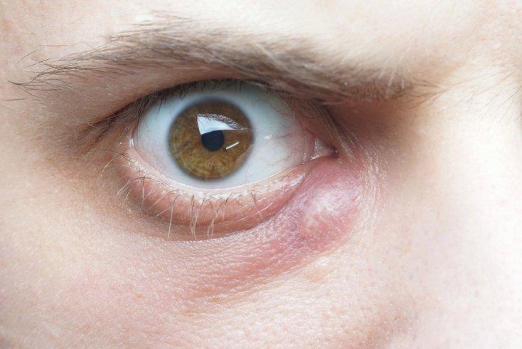 Симптомы при карбункуле: уплотнение, боль, интоксикация и другое