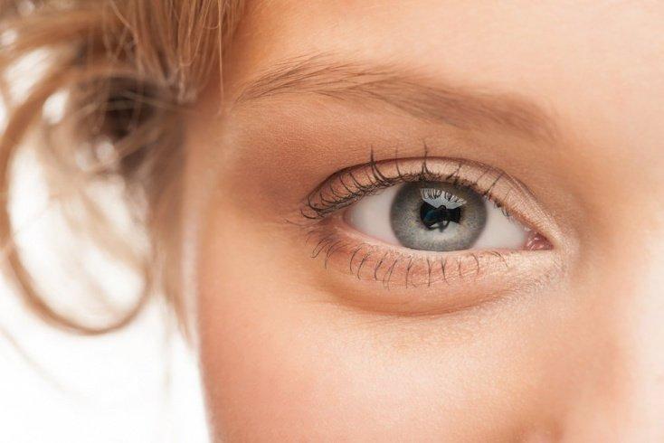 Избавление от отеков и темных кругов вокруг глаз