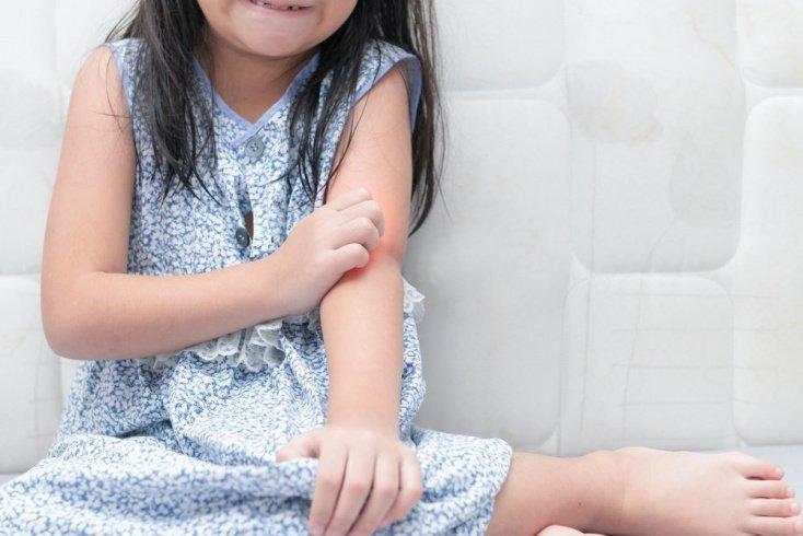 Виды псориатических поражений у детей