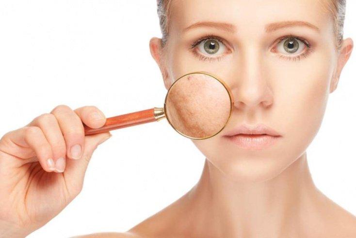 Салонные процедуры в борьбе с пигментацией на лице