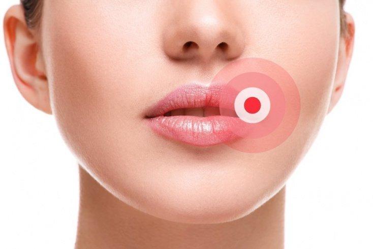 Помеха красоте губ: вирус герпеса