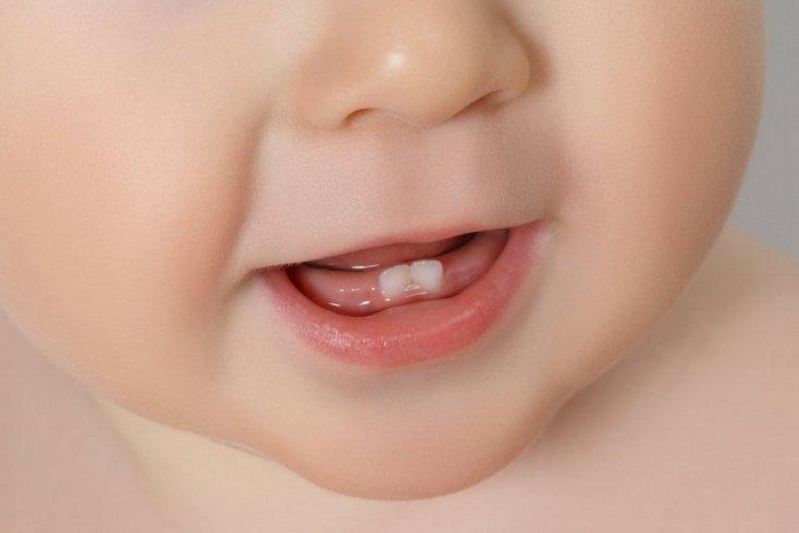 Температура и диарея у детей — не симптом прорезывания зубов