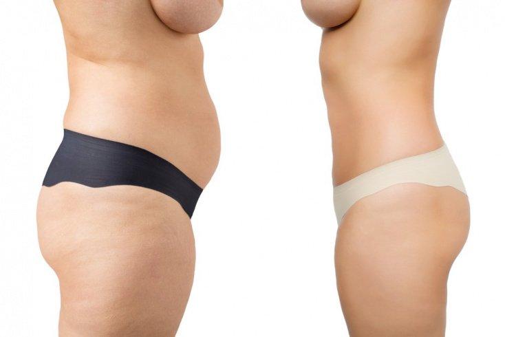 Прощай, лишний вес: реабилитация после откачки жиров
