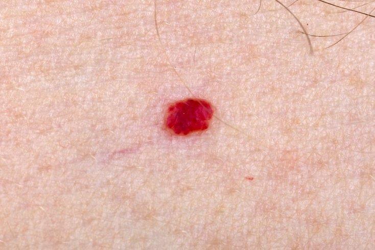 Симптомы при гемангиоме позвоночника, селезенки и других органов