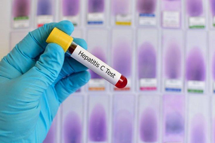 Как происходит заражение гепатитом С?