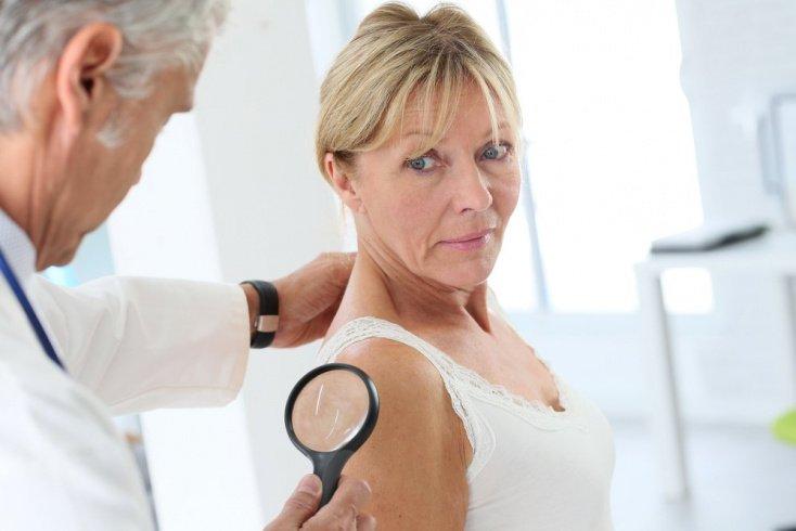 Как диагностировать вирус папилломы?