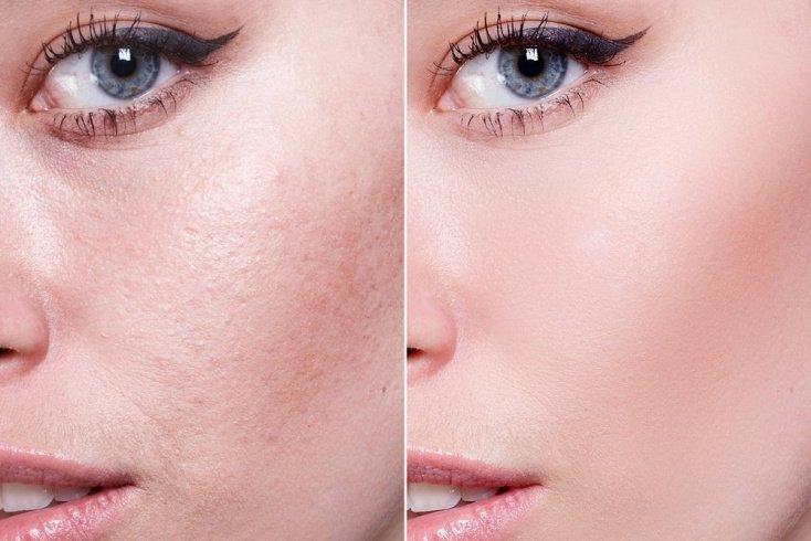 Пилинг для кожи: эффект от процедуры