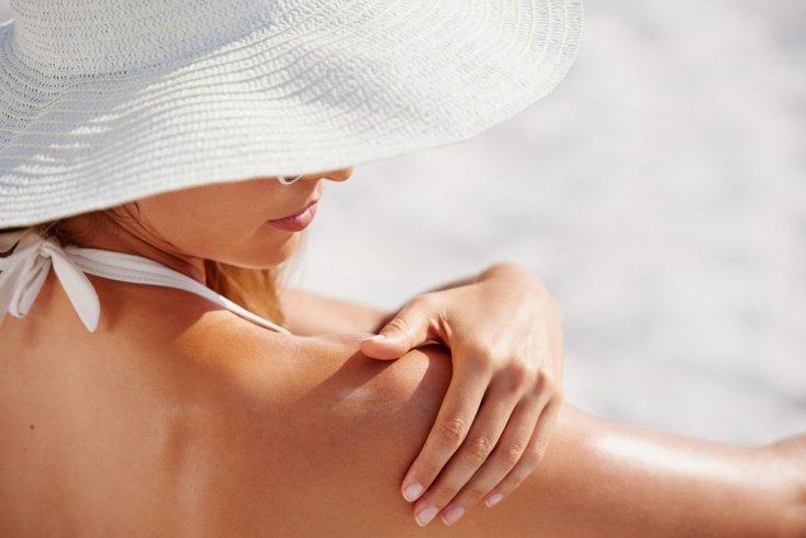 Как лечить солнечные ожоги: охлаждение, но не озноб
