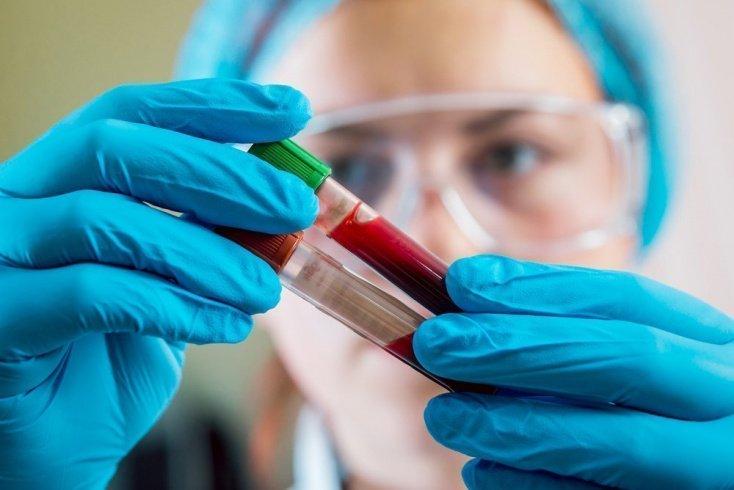 Общий анализ крови и его главные показатели
